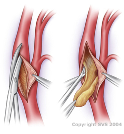 Carotid Endarterectomy operation